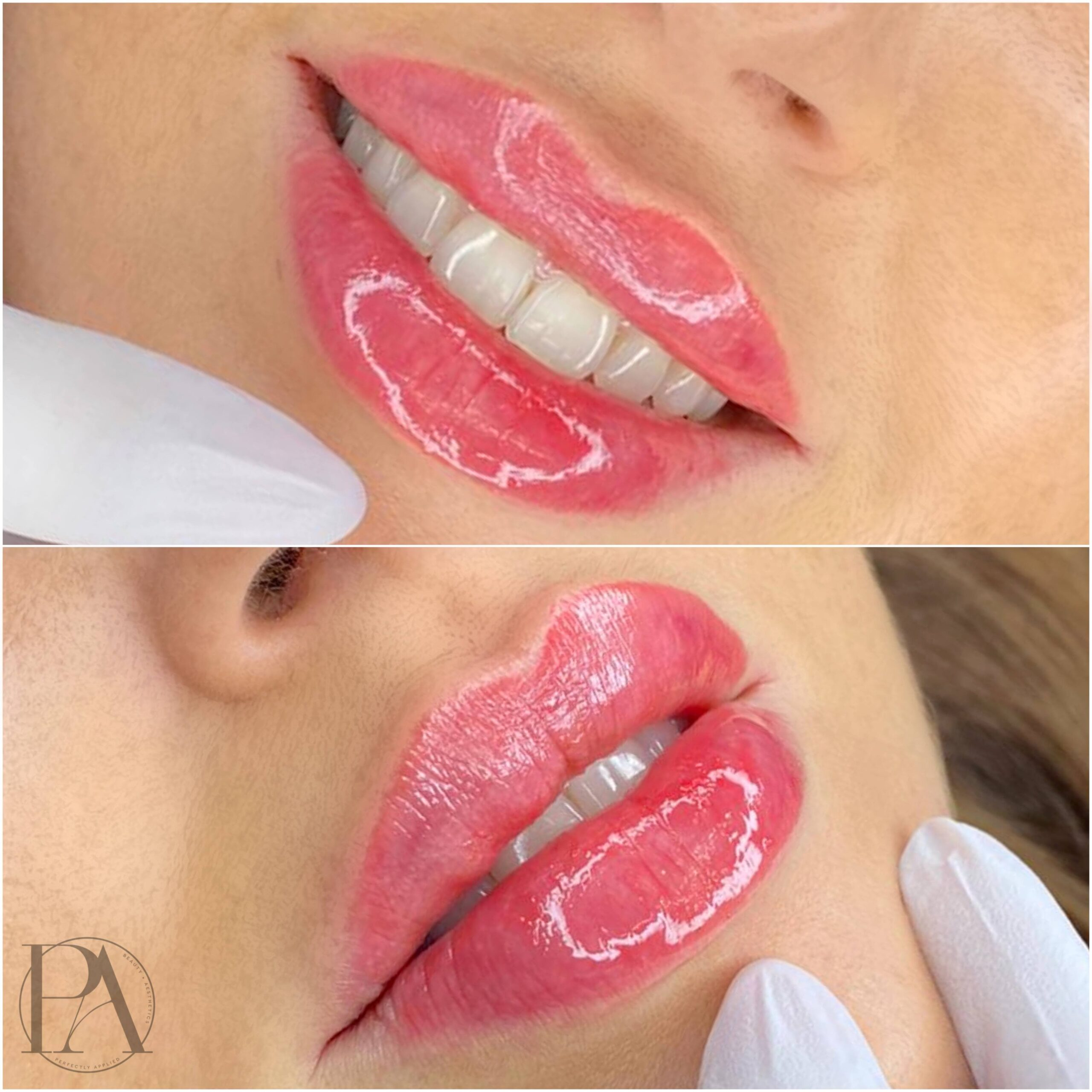 before and after lip fillers