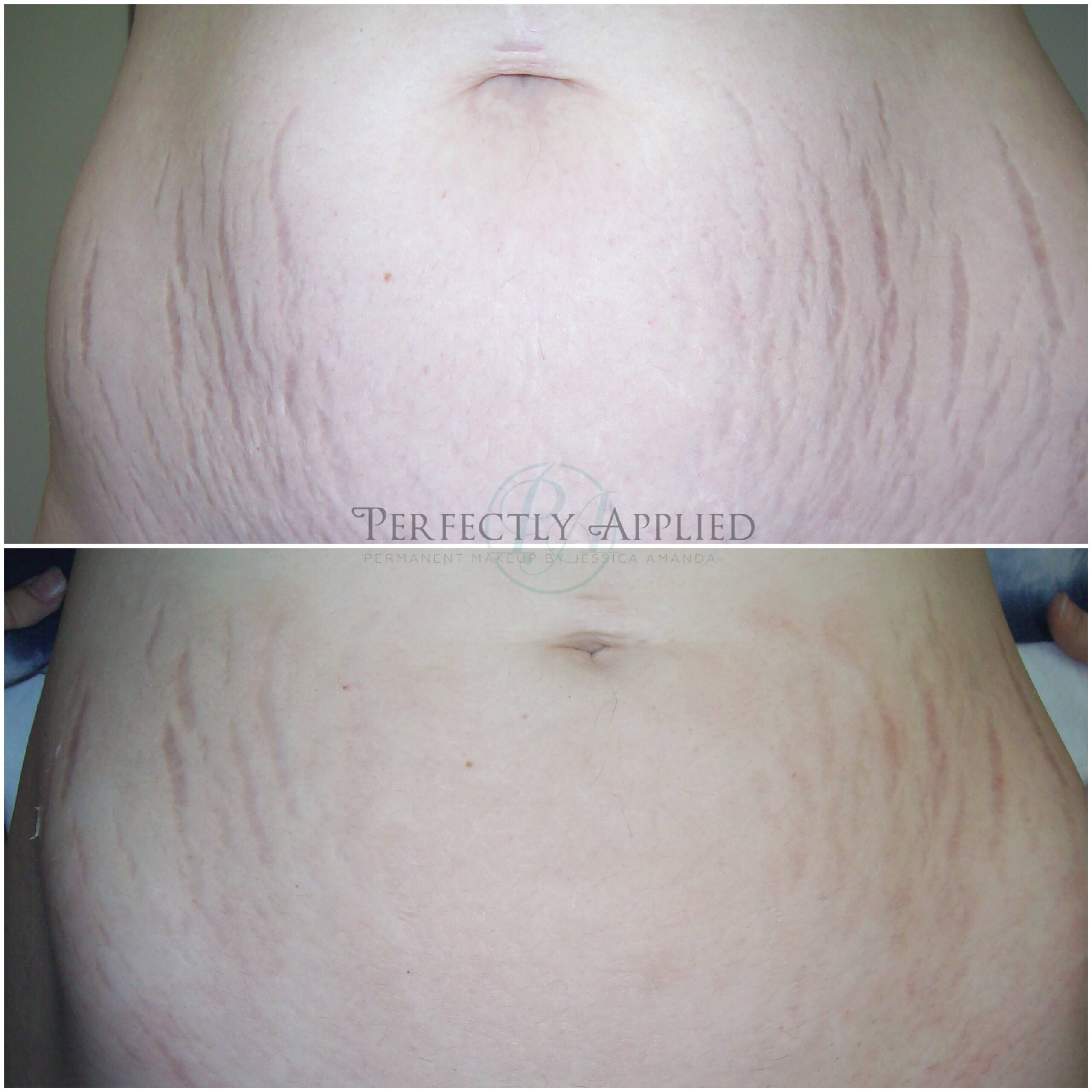 Before And After Tummy Stretch Marks